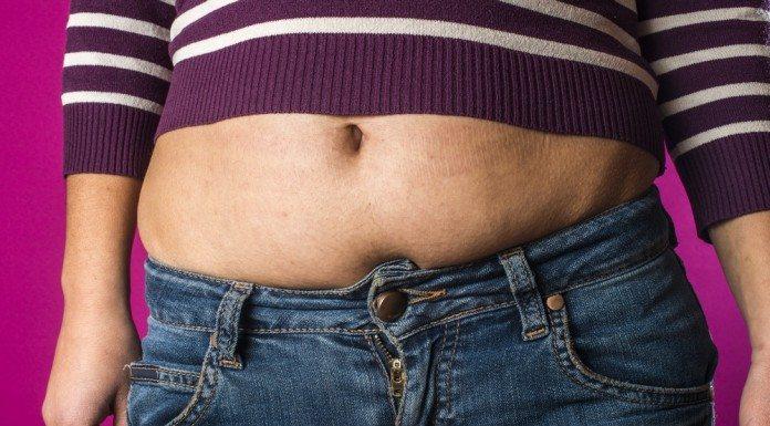 Obesity is not pretty