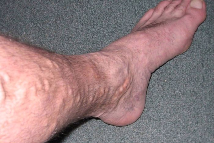 Varicose veins on the leg of a 49-year-old man.