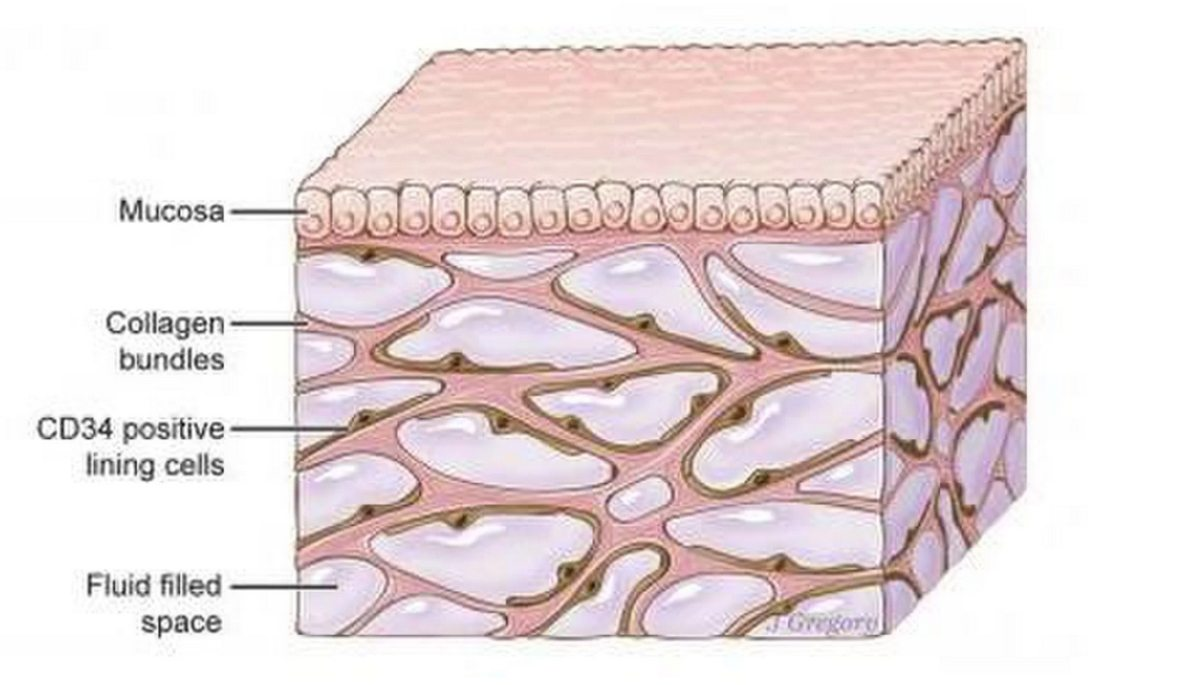 An image of the interstitium beneath the top layer of skin. Researchers say the organ is a body-wide network of interconnected, fluid-filled spaces supported by a lattice of strong, flexible proteins. Credit: Illustration by Jill Gregory. Printed with permission from Mount Sinai Health System, licensed under CC-BY-ND.