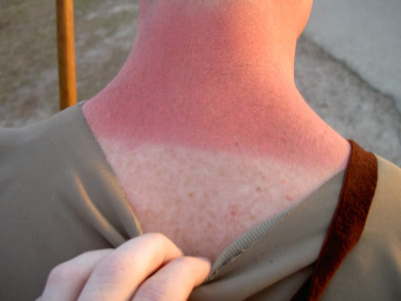 Summer is all fun, cotton candy, and beaches until you fall asleep outdoors and get burned red by the sun.